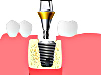 implantatsiya-08